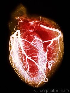 Coloured arteriogram X-ray (or angiogram) showing in fine detail the coronary arteries of the heart.