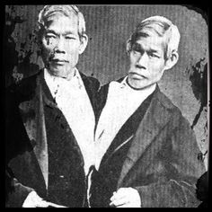 Circus Freaks conjoined twins
