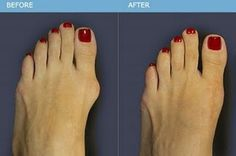 how-to-get-rid-of-bunions-on-the-feet-and-joint-pain