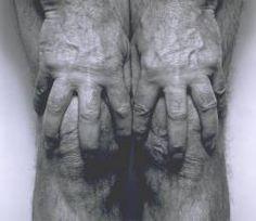 John Coplans 'Self-Portrait (Hands Spread on Knees)', 1985 © The estate of John Coplans
