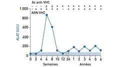 L'hépatite chronique modérée ou sévère apparaît chez 25 % des patients atteints d'hépatite chronique C. Ces patients restent asymptomatiques mais peuvent présenter une asthénie (fatigue). Les transaminases sont plus élevées que les patients atteints d'hépatite chronique minime. La biopsie hépatique montre des lésions plus marquées d'activité et une fibrose plus ou moins importante.