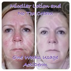 My lovely friend suffers from ROSACEA and SENSITIVE SKIN. Check out her RESULTS after only one week of using MICELLAR LOTION and NO TOX CREAM! Look how her skin now glows! Beautiful! Ask me for details! Xx  #rosacea #skincare #beauty #glow #sensitive #facetherapy #actiderm #actiglamdotcom #heretohelp #nobotox #noneedles #feelgood #fresh #men #women