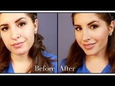 How To Cover Acne With Foundation Perfect for those tasked with concealing cystic pimples and unsightly acne-related blemishes on a daily basis, this video is full of useful techniques for creating a flawless finish on a difficult canvas.