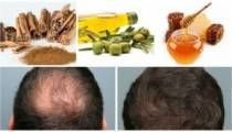 Go Back To Natural Hair Color. Good hair care Information For Healthy, Solid Hair Dull Hair, Hair A, Grow Hair, Hair Growing, Natural Hair Care, Natural Hair Styles, Ancient Recipes, Hot Hair Styles, How To Make Hair