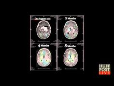 ▶ Cannabis oil cures baby of an Inoperable Brain Tumor says Dr.William Courtney cureyourowncancer.org - YouTube