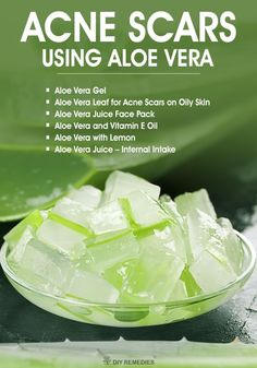 How to Clear Acne Scars using Aloe Vera - DIY Natural Home Remedies Aloe vera, also called as Plant of life is a very effective natural remedy for treating acne and the acne scars on the skin. Regular usage of aloe vera will significantly reduce the visi Acne Skin, Acne Scars, Acne Face, Oily Skin, Scar Remedies, Scar Treatment, Hair Treatments, Natural Treatments, Acne Scar Removal