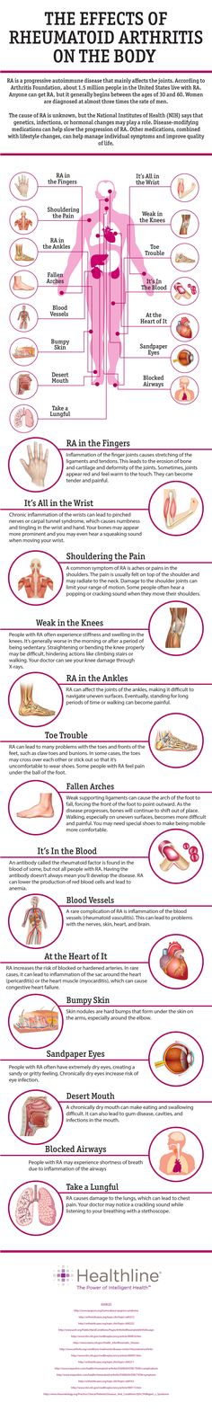 Effects of Rheumatoid Arthritis on the Body