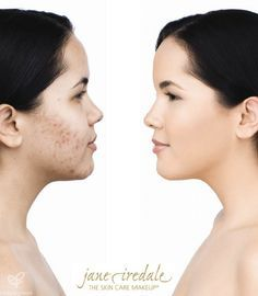 Jane Iredale mineral makeup is great for all skin types and so good for your skin! Check out this before and after picture…you can hardly see her acne and scarring! #janeiredale #mineralmakeup #makeup #beauty #acne @spaspringridge  Norhbrook, IL 847-393-4770 Wyomissing, PA 610-927-3223