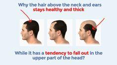 *** New Natural Hair Loss Solution***