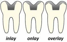 Lindenbrook Dental Care is a comprehensive family dentist office in Flint, MI. Call today to schedule a dental appointment! Dental Assistant Study, Dental Hygiene Student, Dental Procedures, Dental Humor, Dental Hygienist, Dental Quotes, Dental World, Dental Life, Dental Health