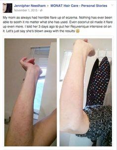 Monat Rejuveniqe has 101 uses. It works amazingly on eczema.