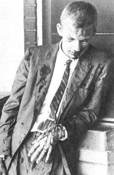 Freedom Rider Jim Zwerg waits for transportation to a hospital photo taken on 14th May 1961; segregation laws prohibited Black taxi drivers from giving rides to whites and white cabbies refused to transport Freedom Riders of any race.