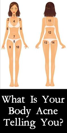 What Is Your Body Acne Telling You? http://positivemed.com/2014/11/07/body-acne-telling/