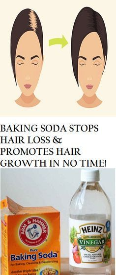 BAKING SODA STOPS HAIR LOSS & PROMOTES HAIR GROWTH IN NO TIME!
