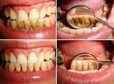 Dogal Yöntemlerle Diş Temizliği - Anlamlı Sözler