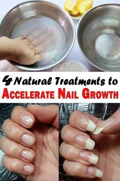 Do you wish your nails would grow faster? Here's what you can do to accelerate nail growth! Try at home these natural treatments and the results will be amazing.
