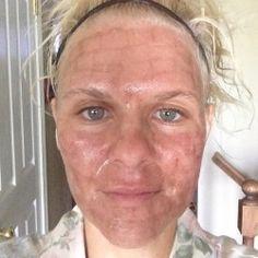 52 Best Laser Skin Resurfacing Halo Bbl Amp More Images