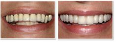 All on four dental implants The Problem Widespread gum disease and a displeasing smile due to darkness and lack of uniformity of the gums. The Solution Upper rehabilitation on implants with prosthetic gum replacement