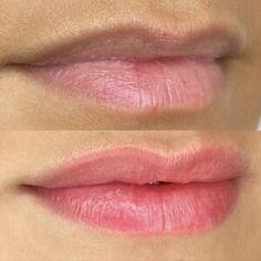 Lip Blush — Laurel Botox Fillers, Lip Fillers, Lip Color Tattoo, Lip Permanent Makeup, Tattoo Process, Cosmetic Tattoo, Dark Lips, Lip Colour, Lip Tint