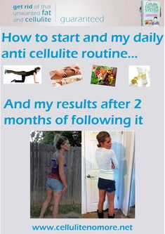 Here's how to start getting rid of cellulite and how to create an anti cellulite routine and follow it daily. If you want to get rid of cellulite this is really a must!
