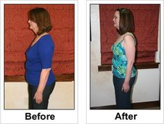 Full Gallery at : Weight Loss Before/After Set 2   http://www.revitol.com/product/overview/Revitol_Cellulite_Solution/