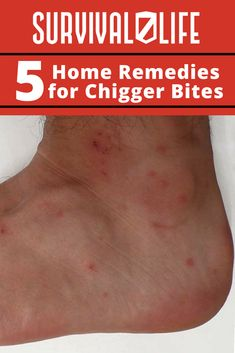 Remedies For Health - Chiggers can be an irritating pest in the summertime for animals and humans alike. Learn how to treat chigger bites at home with these home remedies. Home Remedies For Uti, Uti Remedies, Holistic Remedies, Natural Home Remedies, Health Remedies, Best Teeth Whitening, Survival Life, Survival Stuff, Herbal Medicine