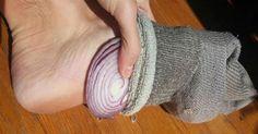 Estos son los beneficios para la salud de dormir con una rodaja de cebolla en tu calcetín #salud