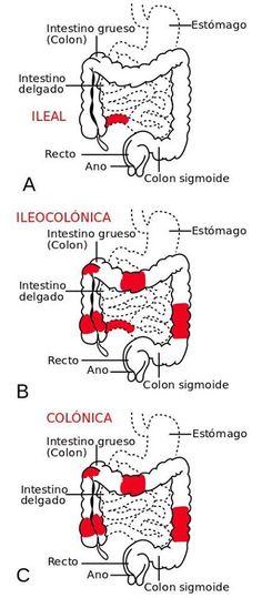 Tipos más frecuentes en la Enfermedad de Crohn.