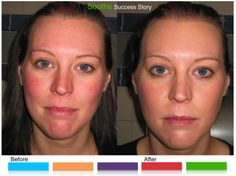 """No need to be red from rosacea - use R+F""""Soothe"""" Regimen. www.tda.myrandf.com"""