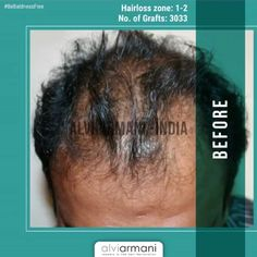 Alvi Armani Hair Restoration specializes in Advanced FUE Hair Transplants, Offices in Los Angeles, CA. Hair Transplant In India, Best Hair Transplant, Armani Hair, Natural Hair Care, Natural Hair Styles, Hair Restoration, Hair Loss, Cool Hairstyles, Book