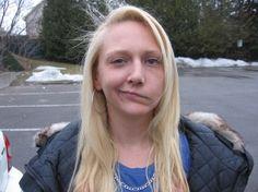 ramsay hunt syndrome - Google 検索 | Otorhinolaryngology | Pinterest