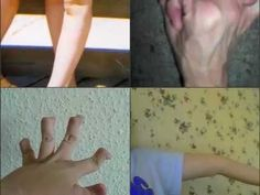 Ehlers Danlos    I tried to include as much as possible but it is impossible to incorporate ev...