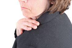 Te Enseñamos Como Eliminar la La Caspa o Dermatitis Seborreica en el Cabello   MI MEDICO NATURAL