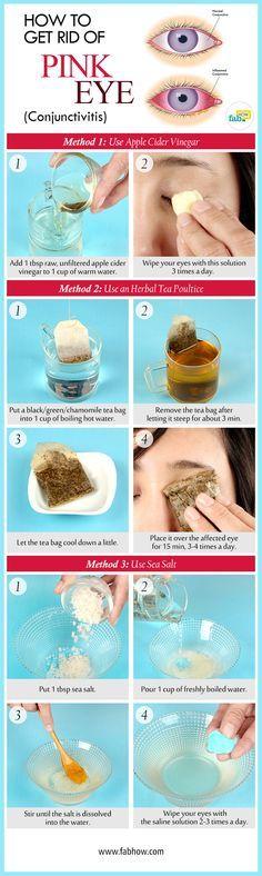 get rid of a pink eye without antibiotics