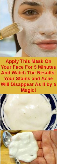 Apply This Mask On Your Face For 5 Minutes And Watch The Results: Your Stains and Acne Will Disappear As If by a Magic!