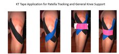 Remedies For Knee Pain kinetic tape for knees Kt Tape Knee, Knee Taping, Knee Meniscus, K Tape, Patella Femoral Syndrome, Patella Fracture, Knee Arthritis, Kinesiology Taping, Knee Exercises