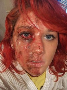 two face/ burns victim  by sasha cole, via Flickr