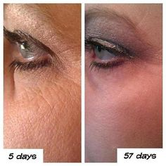 57 days using Nerium!!!! WOW!!!! Get started now…New Year…New You! Get yours now! order here: http://www.lauraevaughn.nerium.com