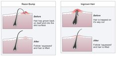 diy ingrown hair cream Ingredients 3 tablespoon of Coconut oil 2 tablespoon of Aloe Vera gel 10 drops of Tea tree essential oil 7 drops of German chamomile essential oil 20 drops of Lavender oil 5 drops of Lemongrass essential oil Ingrown Hair Cream, Treat Ingrown Hair, Ingrown Hair Bump, Infected Ingrown Hair, What Causes Ingrown Hairs, Tee Tree Oil, Ingrown Hair Remedies, Ingrown Hair Removal, Bump Hairstyles