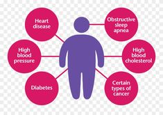 Obesity is a state when your body carries an excessive amount of fat. This is a serious and significant issue as it affects the body with long term diseases Simple Diet, Easy Diets, Healthy Diet Plans, Lifestyle Changes, The Cure, How To Plan, Fit