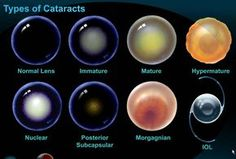 Image result for eye cataract types