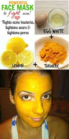 Acne is a very serious skin condition that affects the majority of the population. Generally, it is quite hard to get rid but we show you some easy ways! #naturalskincare #skincareproducts #Australianskincare #AqiskinCare #australianmade