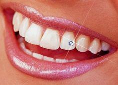 Bitte keine falschen Zahndiamanten mpehr.