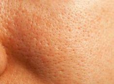 How to minimize pores? How to make pores smaller? Remedies to shrink pores naturally. Get rid of large pores. How to reduce pore size? How to unclog pores? Diy Skin Care, Skin Care Tips, Beauty Care, Beauty Skin, Make Pores Smaller, Wild About Beauty, Reduce Pore Size, Minimize Pores, Tips Belleza
