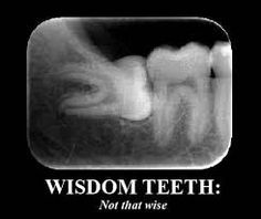 "Do you know all of the reasons why leaving the wisdom teeth that ""have never…"