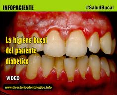 diabetes-higiene-oral