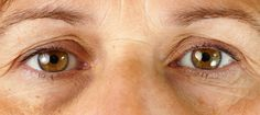 11 Causes of Dark Circles and How to Fix Them | Under Eye Circles Bags