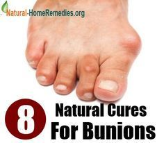 The Foot Problems Bunions Cause #Bunion