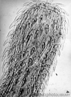 Acanthocephala  Parasitic Worms, Science