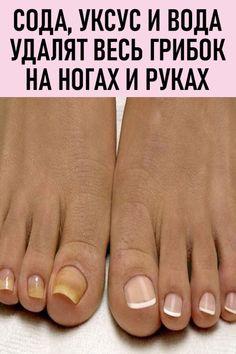 pansels pe picior în varicoză